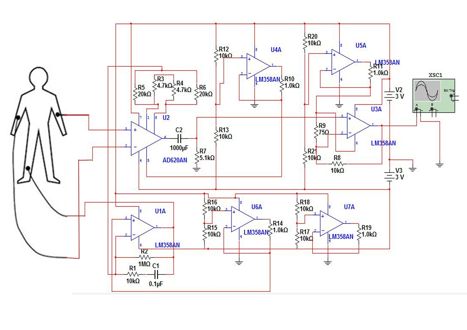 Week 8 Portable Ecg Single Ic Preamp By Lm358 I Just Use Op Amp After Taking A Whole Day Designing Back The Circuit This Is Modified Diagram Looks Like