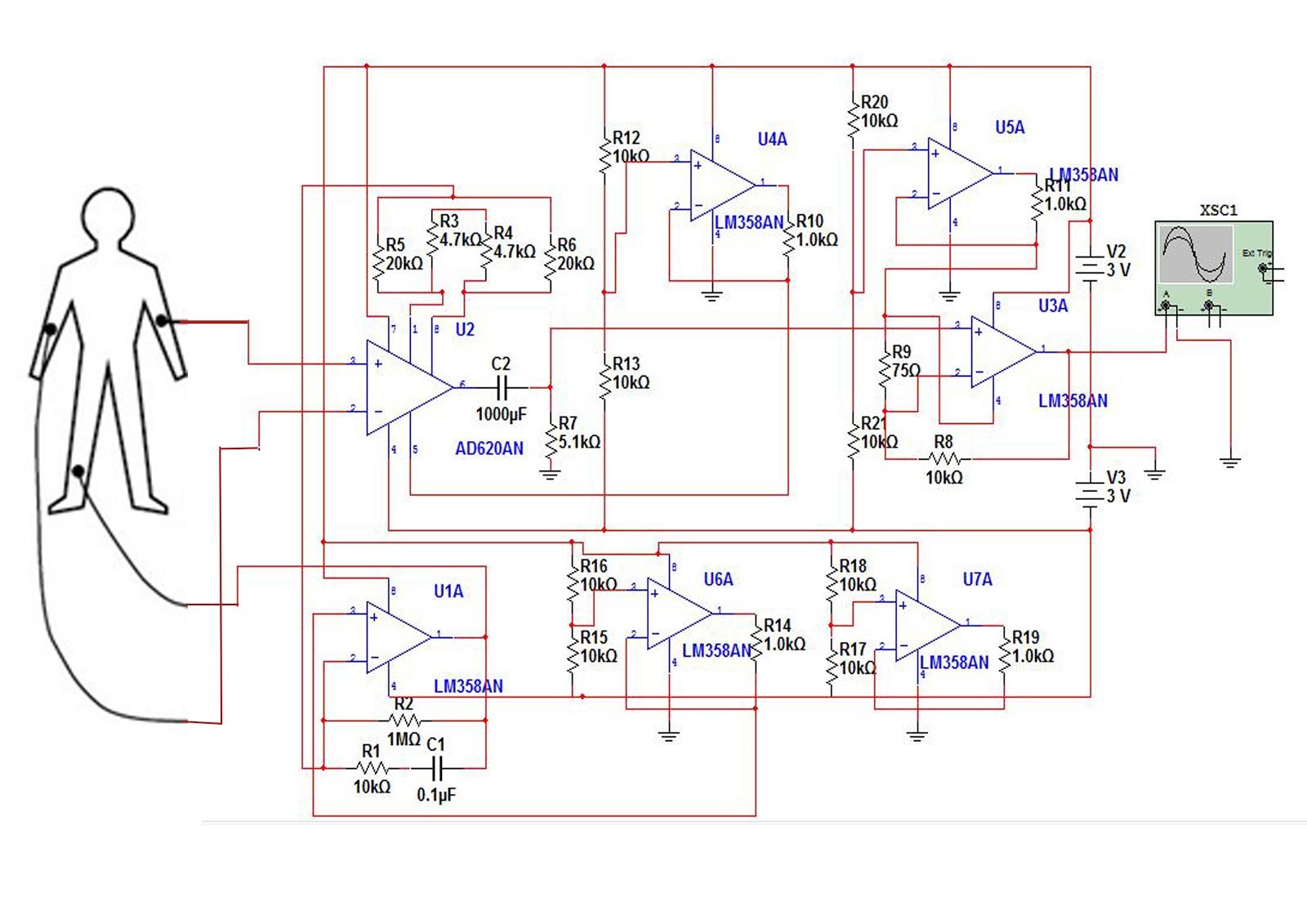 Standard Ekg Diagram Vintage Strat Wiring Ecg Circuit  Readingrat