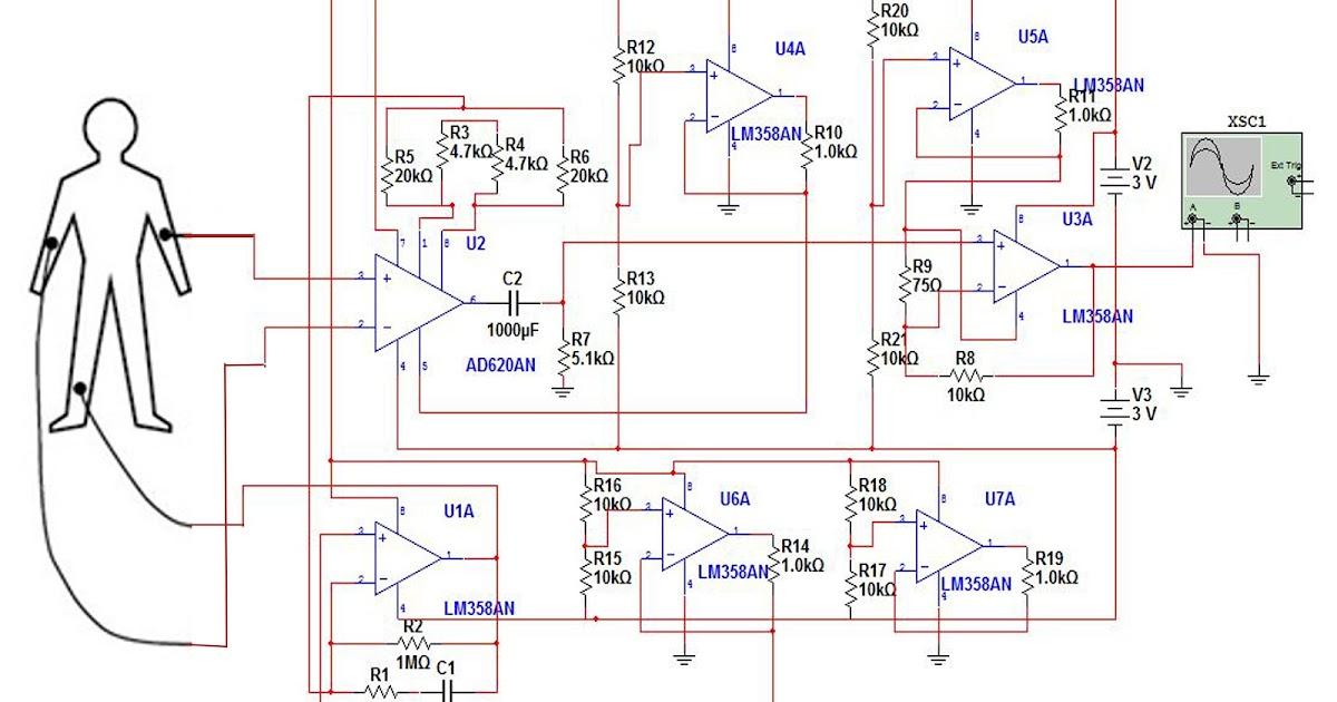 Magnificent Ekg Wiring Diagram Wiring Diagram Data Wiring 101 Ivorowellnesstrialsorg
