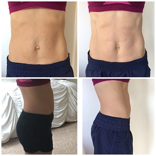 Nerium Night Cream, Firm Cream for Stretch Marks, Before and After