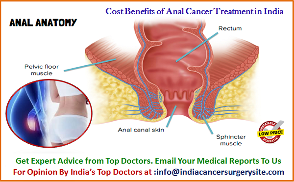 Anal cancer information — img 15
