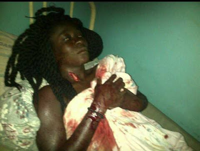 Image result for Nigerian Lady stabbed by her ex-boyfriend's friend wants justice