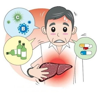 Obat Alternatif Tuntaskan Gagal Hati Akut