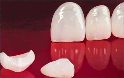 Kết quả hình ảnh cho nó độc lập như vậy các khách hàng răng sứ