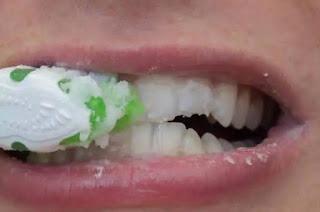 5 Cara Memutihkan Gigi Yang Kuning Dengan Cepat Secara Alami