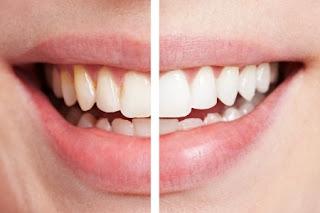 Cara Menghilangkan Plak Pada Gigi dengan Mudah dan Aman