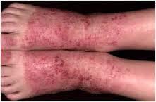 Cara mengobati eksim kering di kaki yang sudah menahun