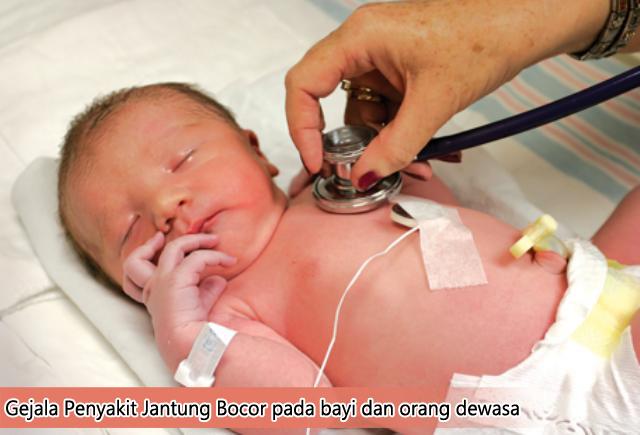Gejala Penyakit Jantung Bocor Pada Bayi dan Orang Dewasa