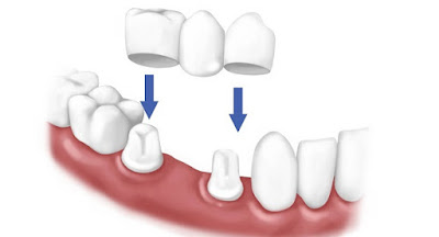 Trồng răng giả bằng phương pháp răngsứ bắc cầu