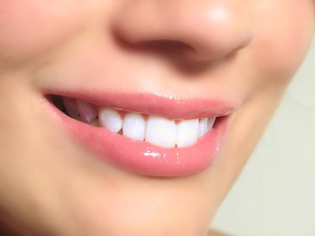 وصفة لتبيض الاسنان من اول مرة