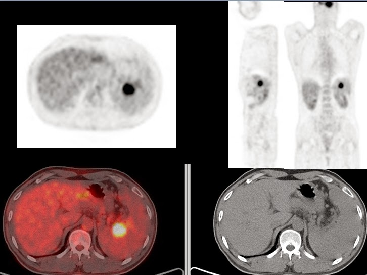Pet Ct Colon Cancer Spleen Metastasis Ned F U Recurrence Normal Cea
