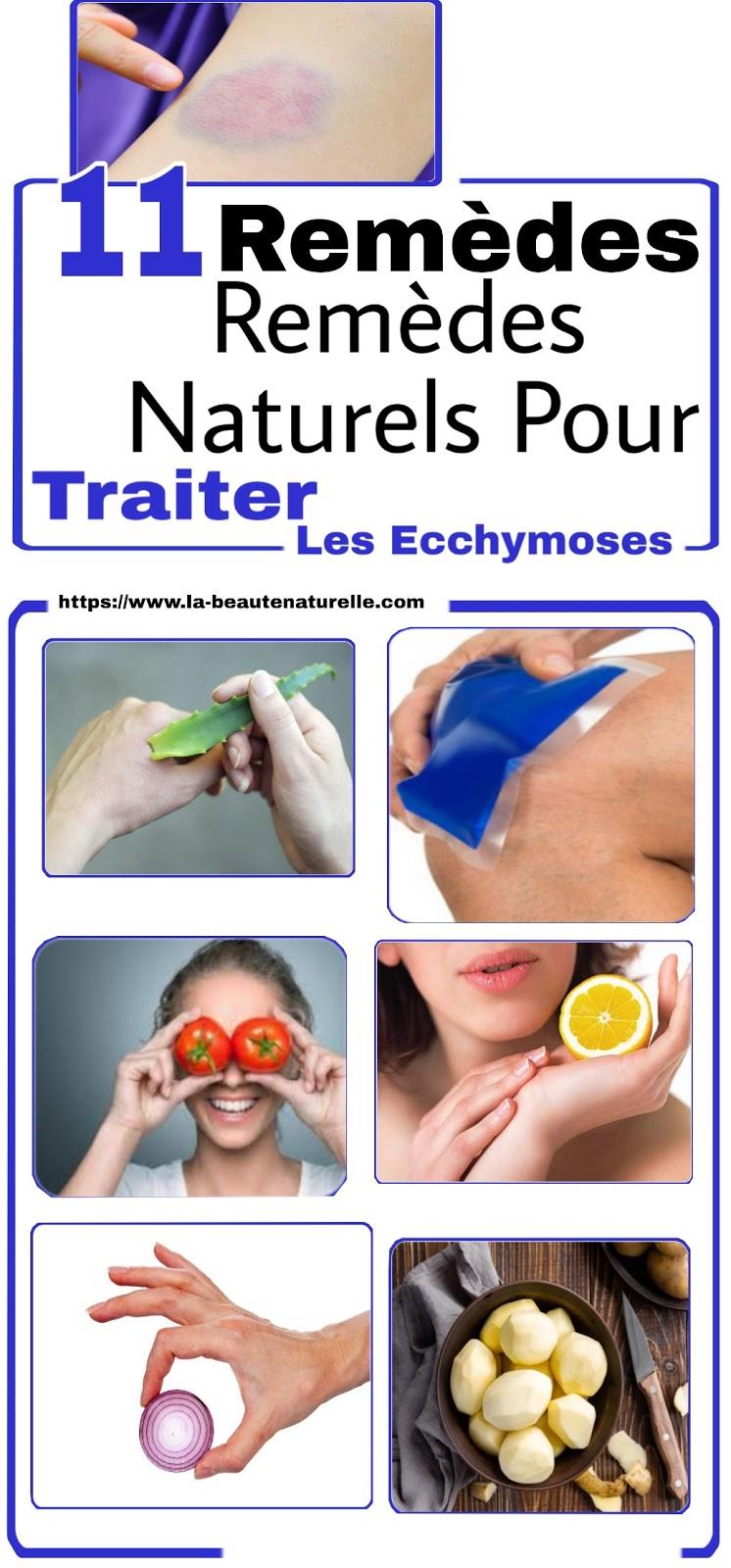 11 Remèdes Naturels Pour Traiter Les Ecchymoses