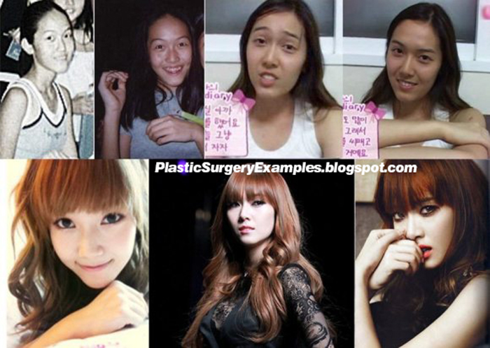 Plastic Surgery Examples Girls Generation Snsd Jessica Plastic