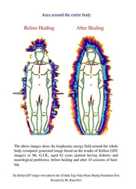 Kirlian Cameras Can See Auras/Emotions, Invisible Energy Fields