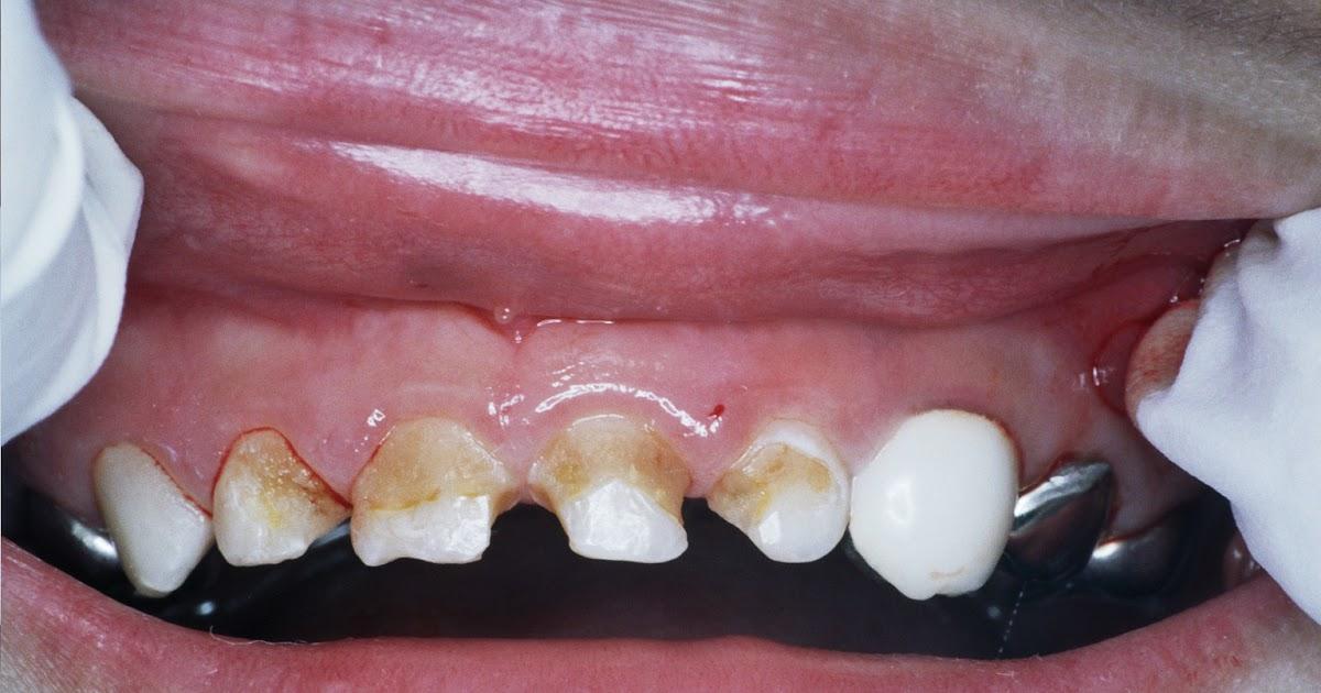 敏華牙醫: 〝門牙黑黑的〞怎麼辦?