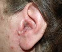 Macam-Macam Penyakit Telinga dan Penyebabnya serta Cara Pencegahannya