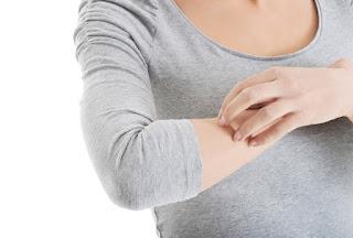 Penyakit Kulit Dompo atau Herpes dan Pengobatannya
