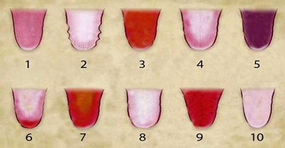 culoarea limbii dezvaluie indicii despre starea de sanatate