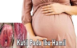 kutil kelamin pada ibu hamil