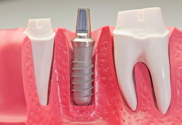Duy trì cấy ghép răng nha khoa lâu dài ?