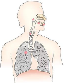 Symptoms of lung cancer and their cause in Hindi