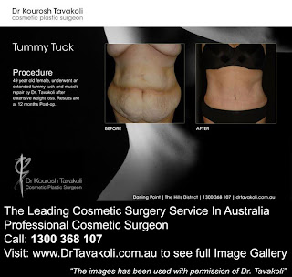 How Much Is A Tummy Tuck