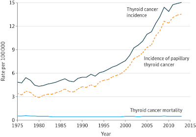 Evolution of incidence of thyroid cancer in USA