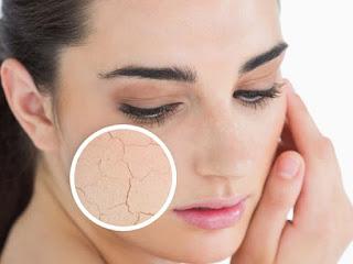 Xử lý đúng cách khi da bị dị ứng vì mỹ phẩm
