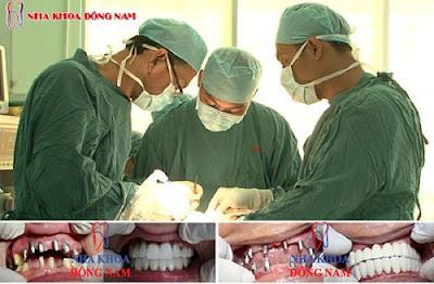 trồng răng implant ở đâu mùa world cup -2