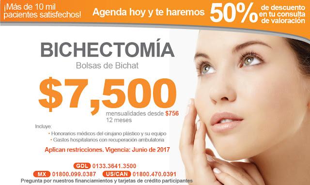 Bichectomia en Guadalajara . Cirugia de Bolsas de Bichat para quitar cachetes