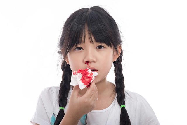 Penyebab Mimisan Pada Anak dan Cara Aman Mengobati Mimisan