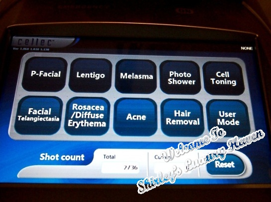 jeysis cellec laser hair removal melasma