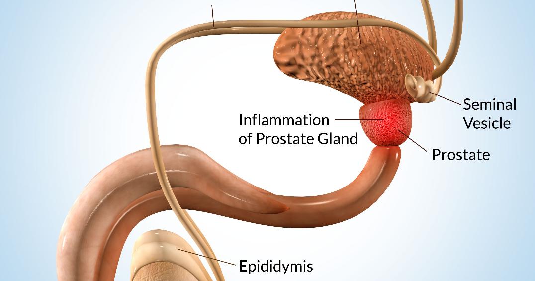 Informasi Lengkap Seputar Kanker Prostat: Apa Itu Kelenjar ...