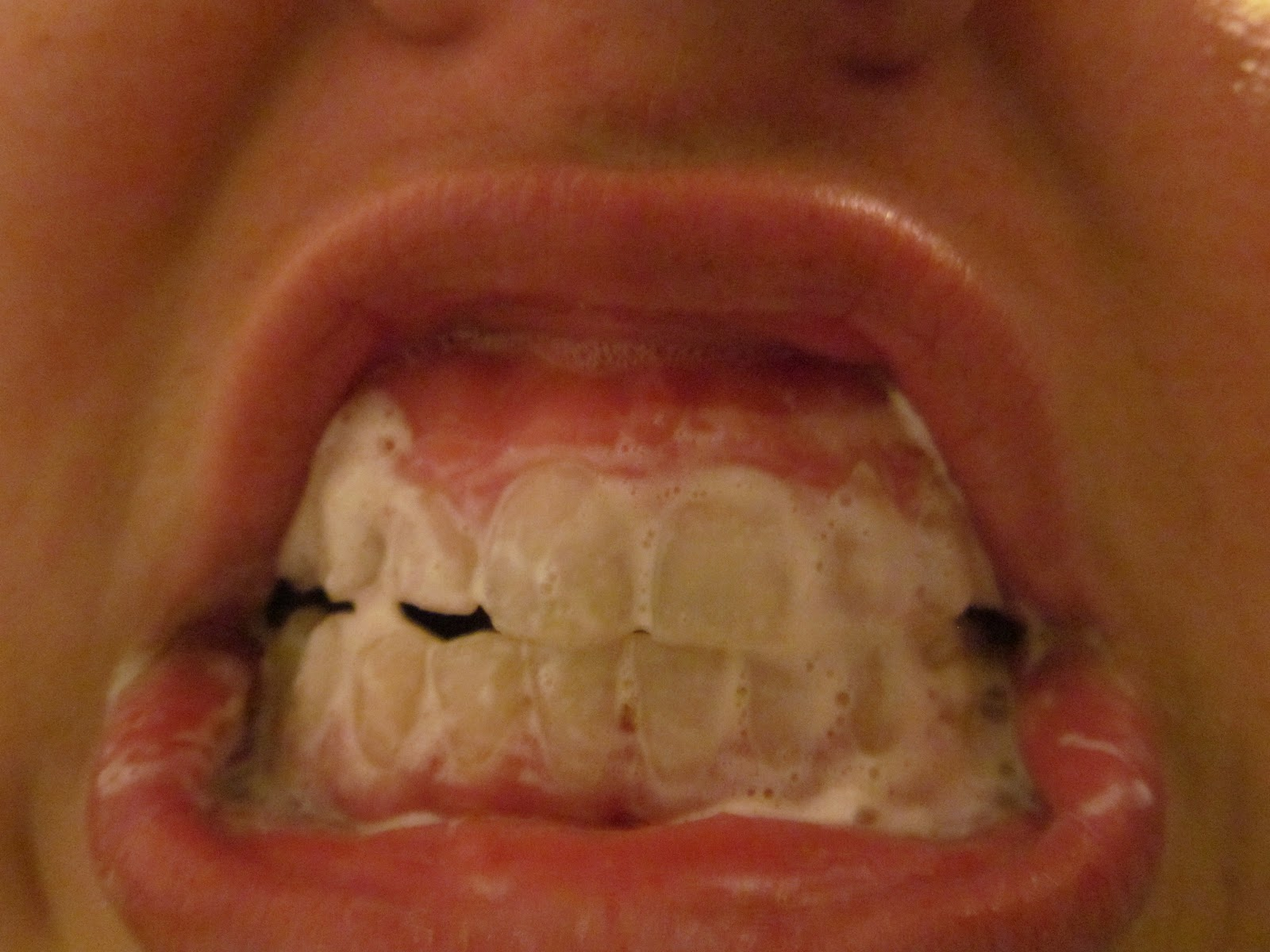 Pinteresting Ideas The Good And Bad Teeth Whitening