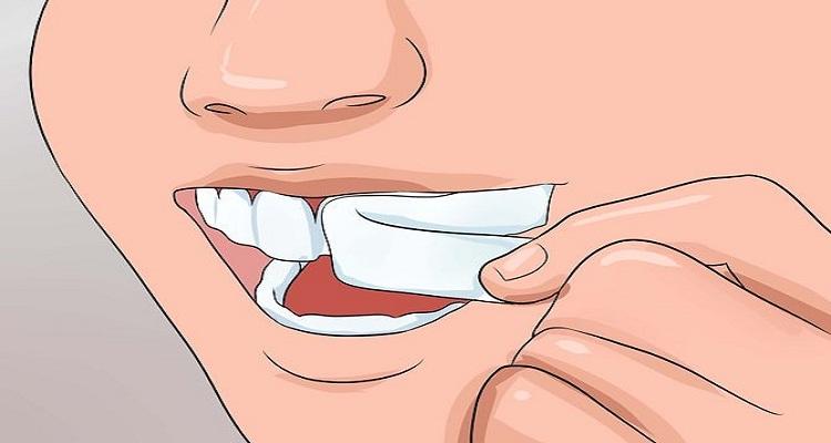 مخدر طبيعي وقوي للتخلص من ألم الأسنان خلال 30 ثانية