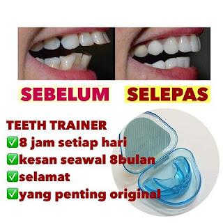teeth trainer testimoni 4