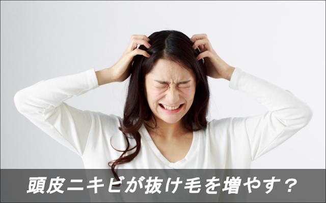 頭皮ニキビが抜け毛を増やす?4つの原因が育毛にも悪影響!