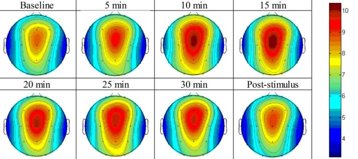 図:シータバイノウラルビートの脳波分布