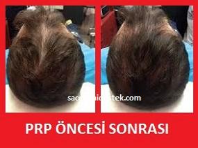 prp saç tedavisi yaptıranlar 10