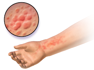urticaria treatment