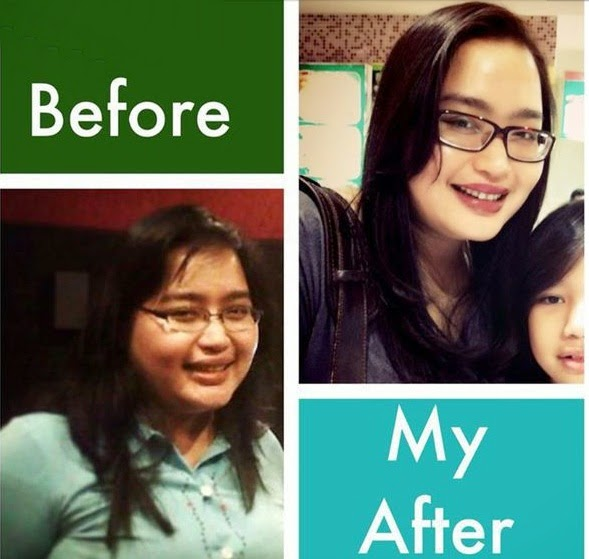 Tya Subiakto Before After
