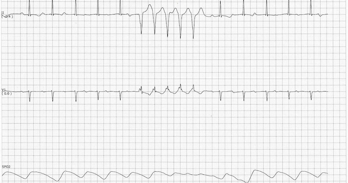 Float Nurse: Practice EKG Strip