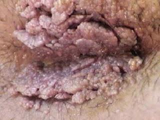 jengger ayam penyebab kutil kelamin