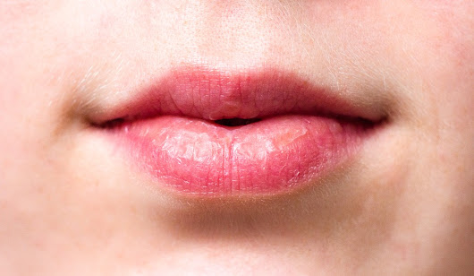 Honey For Chapped Lips: Great Natural Moisturizer - Golden Home Remedies