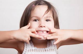 7 Cara Merawat Gigi Balita yang Rusak Sebelum Makin Parah