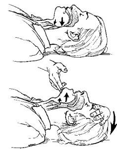 Nurse Call: Medical emergency ( BLS)