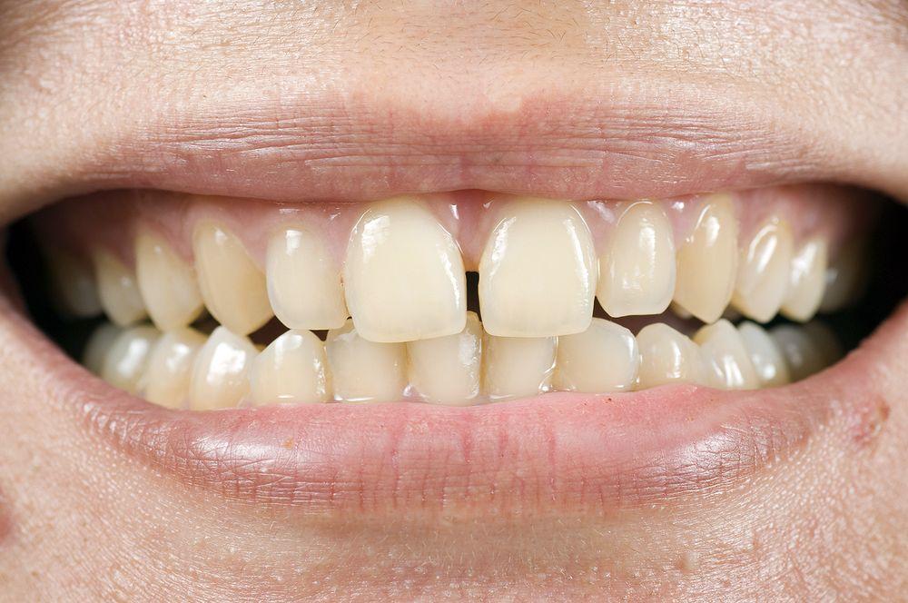 dentes amarelam
