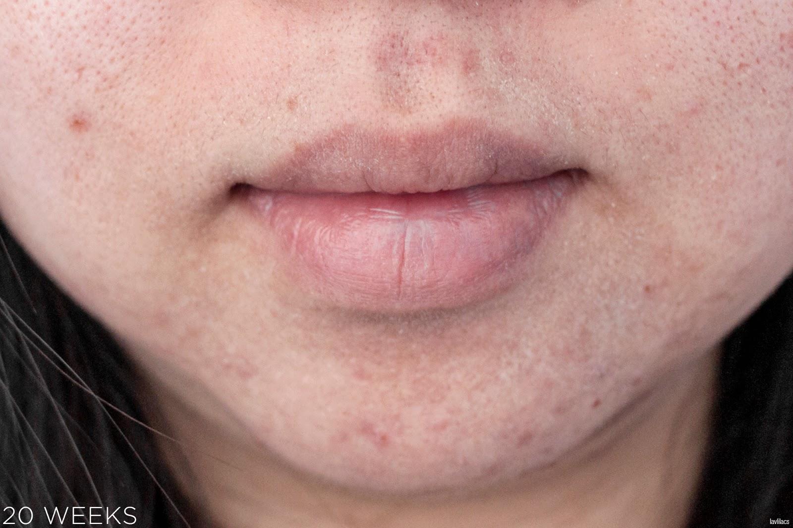 tria Hair Removal Laser Facial Hair 20 Weeks Closeup
