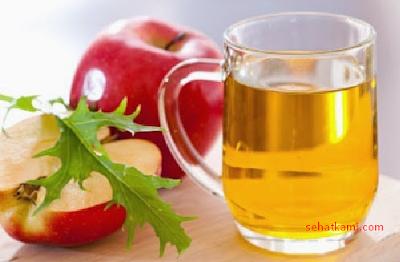 Cara mengatasi keputihan dengan cuka sari apel