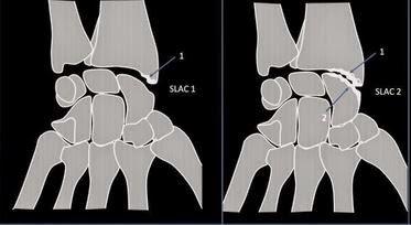 epaule noire arthrose